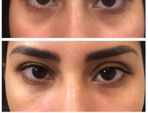 Get Rid of Dark Circles with Belotero